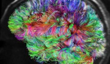 brain-Human ConnProject1-600